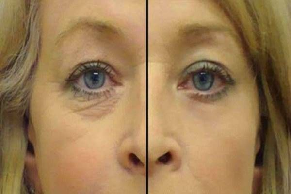 Ezt a két hozzávalót szerezd be, és pár nap alatt megszabadulhatsz a szem alatti ráncoktól