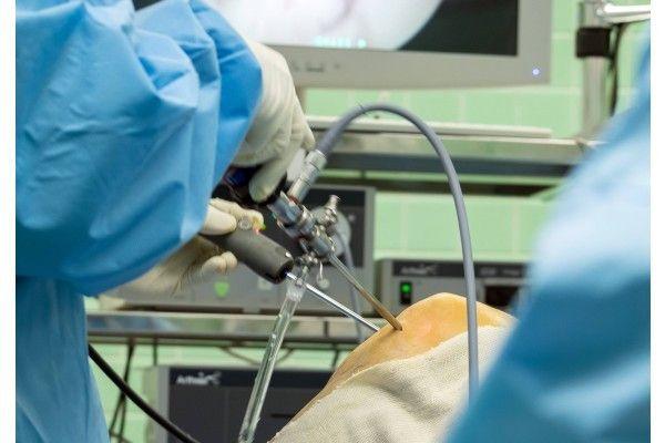 varicosera artroscopie