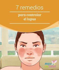 7 remedios para controlar el lupus   El lupus es una enfermedad autoinmune de la que se sabe poco pero que causa graves alteraciones en la células y sobreestimula los linfocitos B.