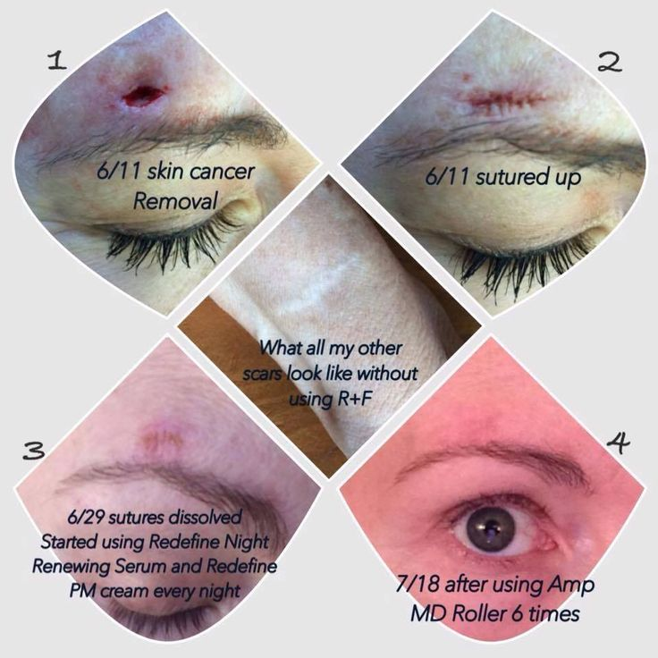 "For those of you struggling with scars from acne, injury, surgery, old or new there is hope with Rodan + Fields! Fellow Consultant Carrie said ""I am so happy with my results with using R+F on my skin cancer scar from June. It is almost completely gone!! Thankfully this one was small compared to my others and the MIDDLE PHOTO shows what all my other scars look like healed WITHOUT using R+F!"" Message me for more information indra.arman@gmail.com"