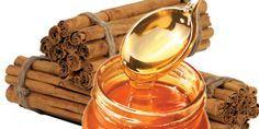 Les gens de nombreuses cultures ont utilisé le miel et la cannelle pour traiter de nombreux problèmes de santé depuis des siècles. La sagesse populaire conserve encore la connaissance des propriétés de guérison tant du miel bio que de la cannelle. 1. Arthrite: Prenez tous les jours, matin et soir, une tasse d'eau chaude avec deux cuillères à café de …