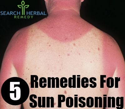 Sun poisoning may be an unknown term for many people. Medical experts or doctors suggest that sun poisoning is actually an extremely severe case of sunburn, which may accompany symptoms like nausea, dehydration, skin rashes, tremendous inflammation of the skin, redness, formation of small blisters and peeling of skin. Sun poisoning is also known as photodermatitis in medical terms. It occurs when sunlight activates the allergens on skin to react with the skin cells and to initiate an…