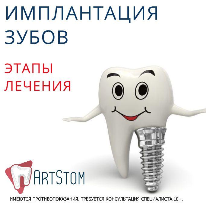 ✍Имплантация – это единственный метод, позволяющий восстановить зуб полностью. Наиболее распространенным вариантом этой процедуры является классический способ установки импланта. В подготовительный этап входят следующие процедуры: 👉визуальное обследование у стоматолога; 👉обследование у терапевта, включая сдачу общих анализов; на основе жалоб или проблем, выявленных у терапевта, пациент может быть направлен на дополнительную консультацию к другим специалистам: аллергологу…