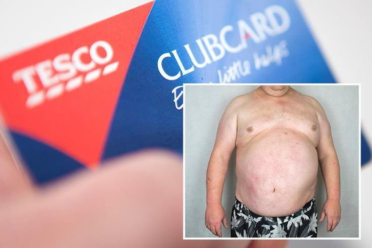 TESCO customers will have their shopping vetted by GPs to get them to ditch junk food. Their Clubcard data will be examined by doctors who will then analyse the fat content of their goods. Those wi…