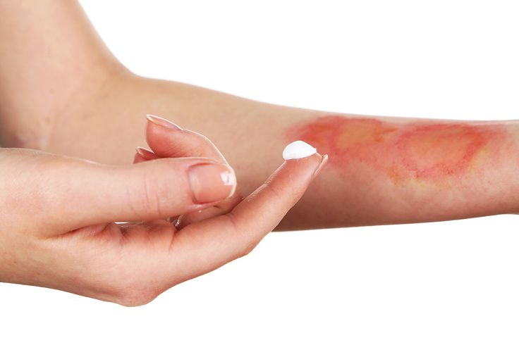 Treatment of burns on female hand, isolated on white