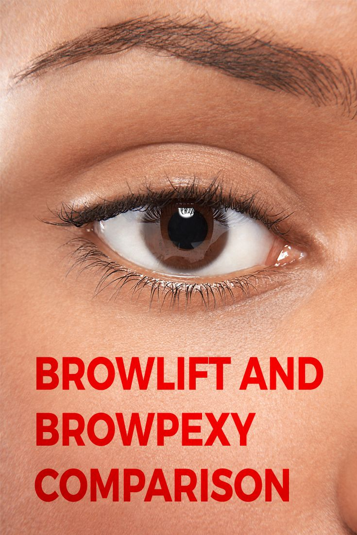 Many people have heard of a brow lift, but not browpexy. Though they sound similar, the two procedures are not the same.  A brow lift is used to reposition the skin and soft tissues of the forehead and brow to diminish forehead wrinkles and sagging of the brow.  Creases and furrows between eyebrows can also be addressed with a brow lift.  Browpexy simply raises the patient's eyebrows to make them more aesthetically pleasing, but has no effect on the forehead.
