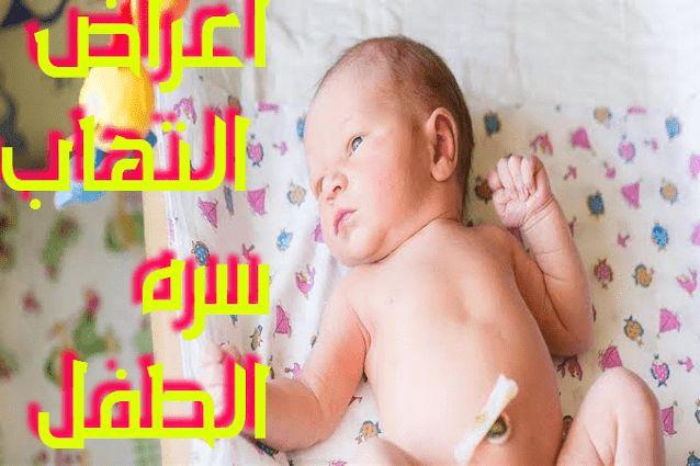 اعراض التهاب سره الطفل In 2021 Baby Face Baby Face
