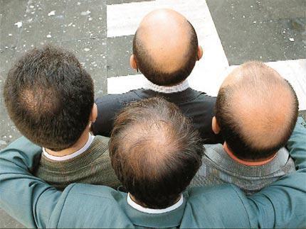 Male pattern Baldness causes & treatment.