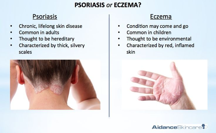 Psoriasis Treatment of Psoriasis with Foot Reflexology 2