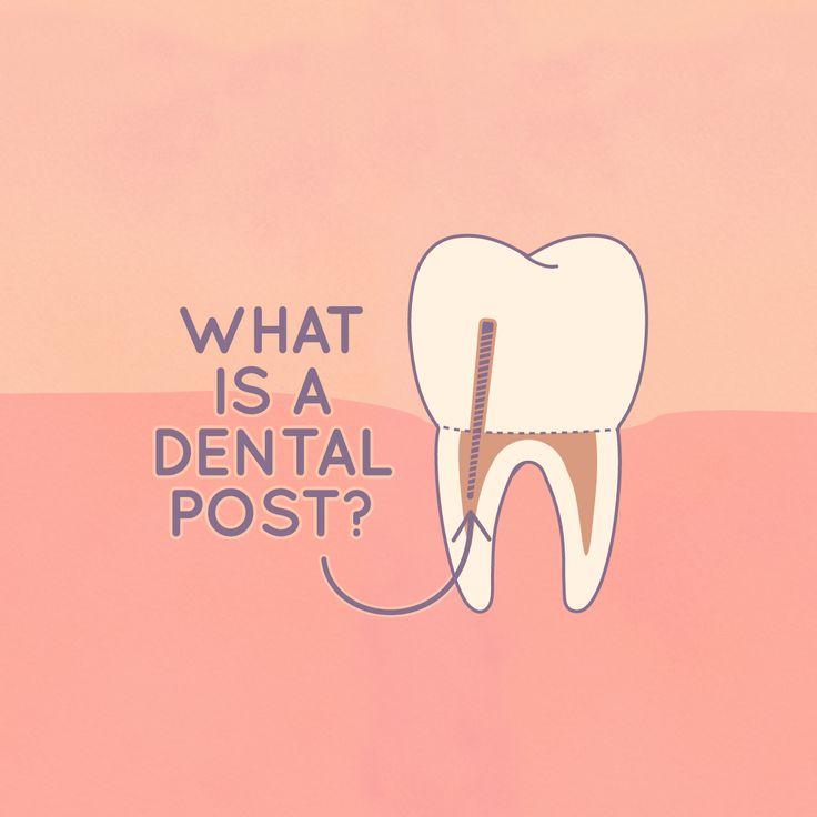 DENTAL POSTS provide support for the new