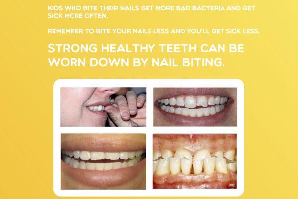 1000 Ideas About Pediatric Dentist On Pinterest Dentistry Dental And Dental Hygienist