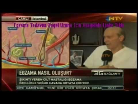En iyi Egzama Eczane ilacı Nedir Tablet Krem Advantan   En Etkili Egzama...