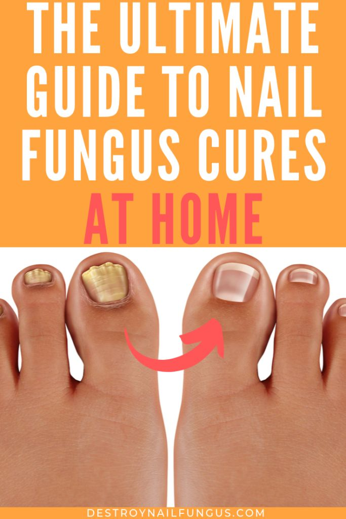 9 Best Home Remedies For Nail Fungus: What Really Works?   – Jock Itch Treatment