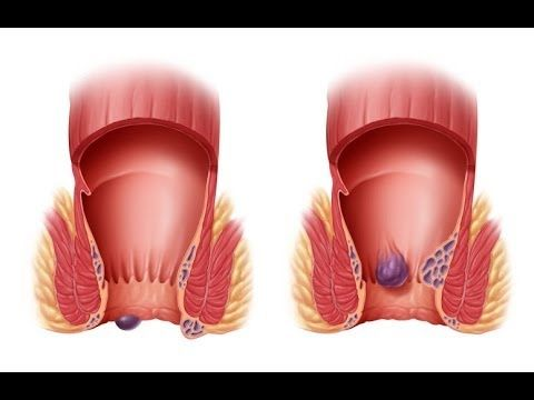 What Is Hemorrhoids, External Hemorrhoid Treatment ...