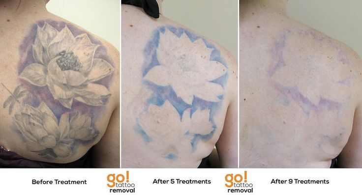 1000 images about tattoo removal in progress on pinterest for How long does it take for a tattoo to fade