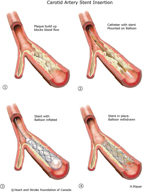 Heart disease - Percutaneous coronary intervention (PCI or angioplasty with stent) - Heart and Stroke Foundation of Canada