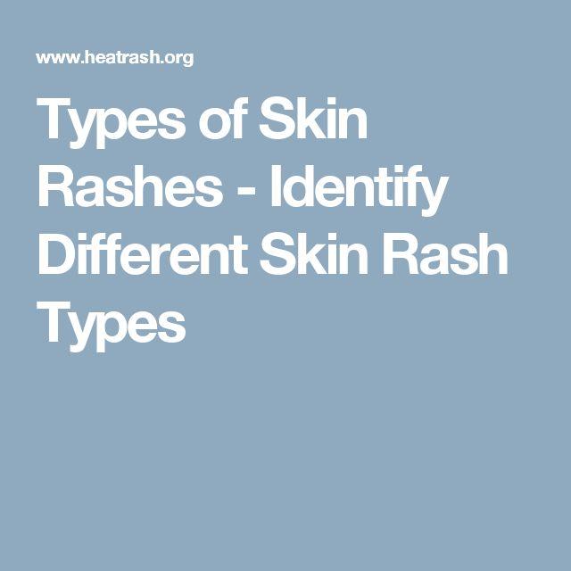 Types of Skin Rashes - Identify Different Skin Rash Types
