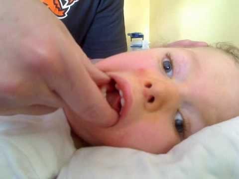 Oral Motor Part 4