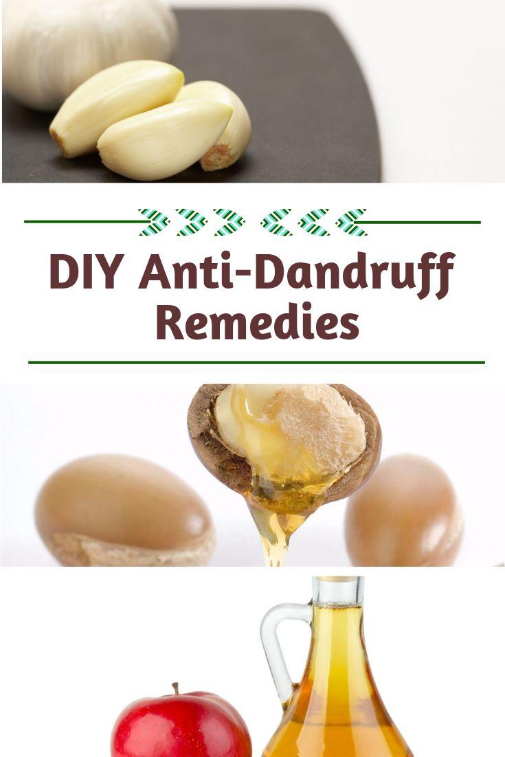 about Dandruff remedy on Pinterest - Dandruff treatment, Home remedies ...