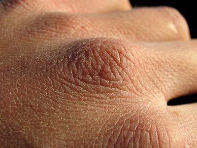 Recette d'huile de massage nourrissante pour les mains et les ongles, à base…