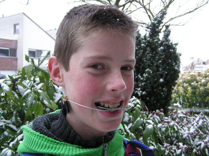 Teen boy braces headgear