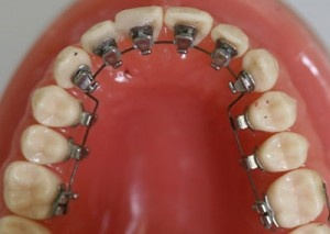 Lingual Braces – What Are They, and How do They Work?