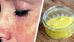 Sapone arabo: il sapone che elimina le macchie della pelle in poche ore