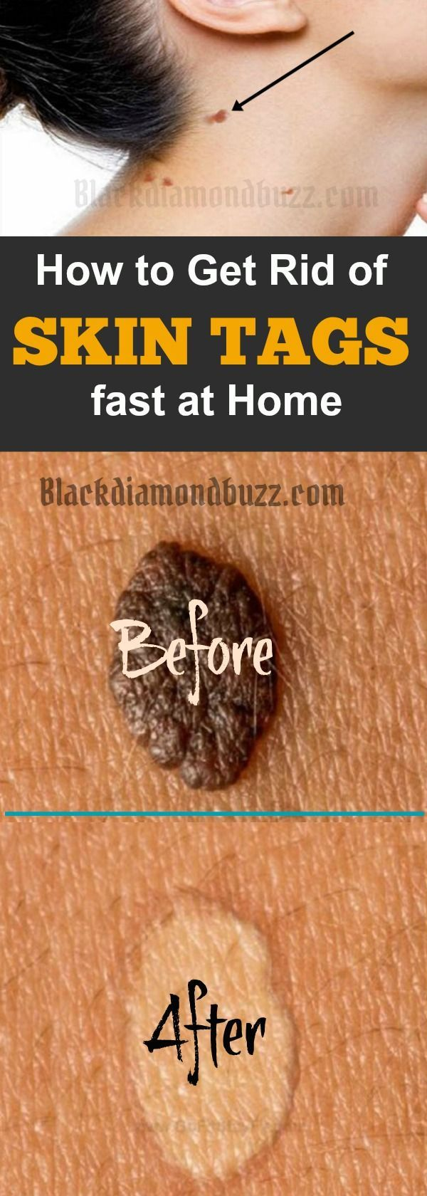 how to get clear skin fast home remedies