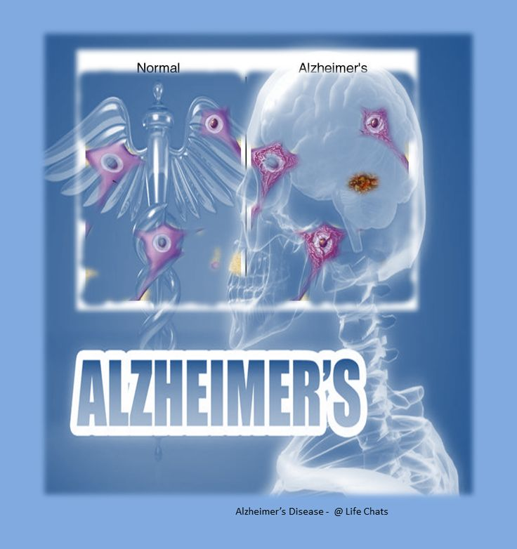 Alzheimer's Symptoms and Stages|Alzheimer's|Alzheimer's symptoms|Alzheimer's stages-Alzheimer's Symptoms and Stages details the real side effects that are more critical than forgetting somebody's name which, they have not seen for some time, or where they last put their wallet.