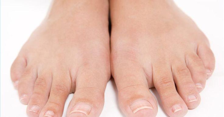Como curar unhas com fungo. Uma unha de dedo com fungo não é fácil de ser curada. Essa é uma infecção fúngica que vive debaixo da unha. Por isso, infelizmente, é bem protegida e de difícil acesso, permanecendo úmida devido a cobertura das unhas. Porém, com um pouco de atenção e uma mistura de tratamentos, é possível se curar. Veja como.
