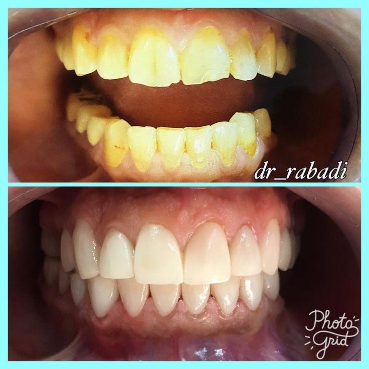 Best Implant Dentist Near Me: 25+ Best Ideas About Dental Crown Procedure On Pinterest