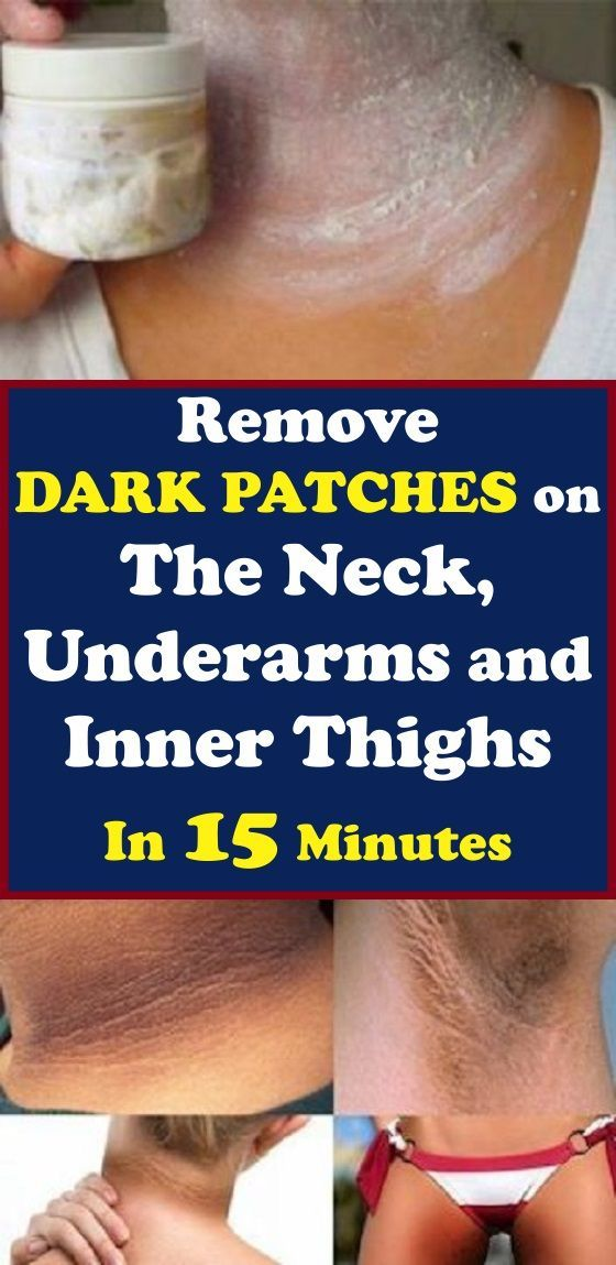 Remove those annoying dark patches on the neck, underarms ...