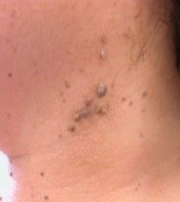 Neck Skin Tags http://skintagremovalhelp.com/skin-tag-removal-procedures/
