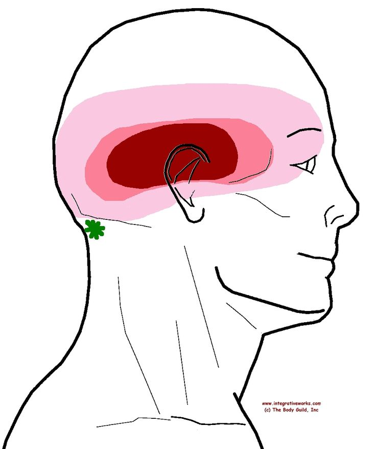 "This headache can be harder to identify because it is overwhelming and you need to get the client to be specific about the pattern. Headache ""all over"" in a band around the head. This pattern actua..."