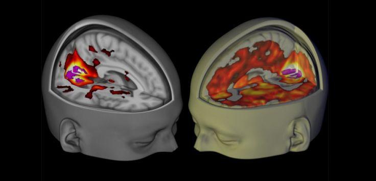 les effets du lsd observés pour la première fois avec les techniques d'imagerie modernes
