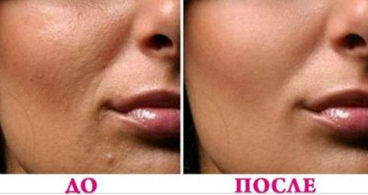 Для здоровой и сияющей кожи нужен надлежащий уход, здоровое питание, мыть лицо дважды в день и никогда не спать с косметикой. Очищающие продукты для лица полны химических веществ и плохо сказываются для общего состояния здоровья. Очищающая маска для лица из кокосового масла с содой – это отшелушивающая маска. После мытья лица с кокосовым маслом и …