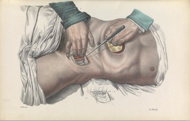 These Grisly 17th-Century Medical Drawings Will Horrify You