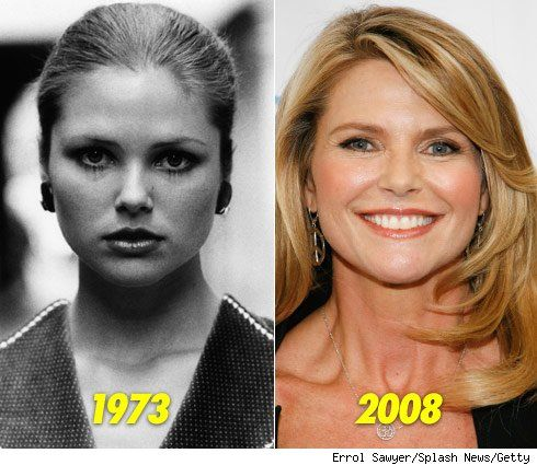 christie brinkley plastic surgery | Christie Brinkley Plastic Surgery For Facelift