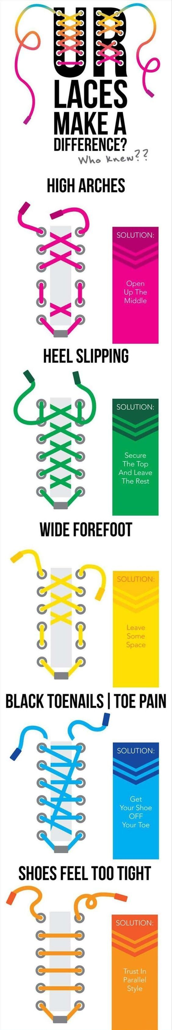 Speaking of laces, they can be changed depending on your specific foot problems: | 17 Shoe Charts Every Guy Needs To Bookmark