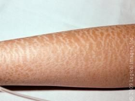 Dry Skin (Xerosis) in Adults: Condition, Treatment and ...