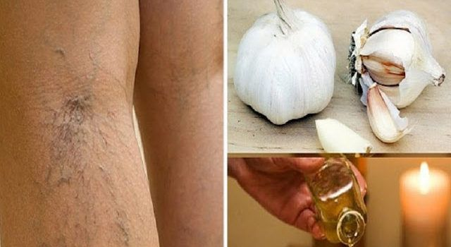 Varicose veins are enlarged, weakened, and visible veins under the skin surface, usually in a dark purple or blue color. It is often caused by various different factors, like genetics, obesity, pregnancy, age, prolonged standing, or straining. When varicose veins appear, they are usually treated with compression techniques, such as the use of compression stockings,…
