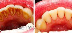 Con un sólo ingrediente podrás olvidarte del dentista y tener una boca totalmente sana ya que podrás blanquear tus dientes, eliminar sarro,placa y mal alie