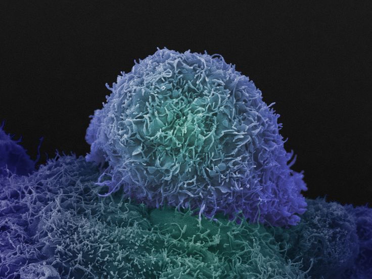 FIND OUT MORE - This is an image of a prostate cancer cell. Read more about prostate cancer, including symptoms and causes, diagnosis and treatments: http://www.cancerresearchuk.org/cancer-help/type/prostate-cancer/