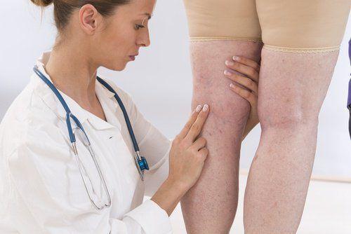 Oggi presentiamo nove diuretici naturali con cui è possibile contrastare la ritenzione idrica nei tessuti
