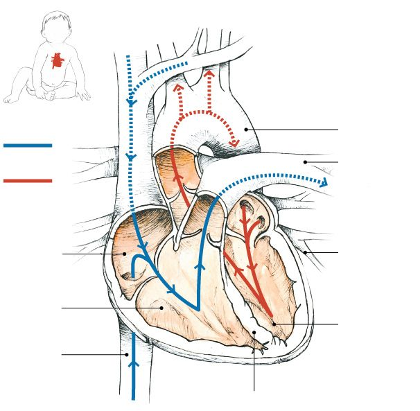 Aortic Stenosis In Children: 82 Best Images About HeARt MURmur ️ On Pinterest
