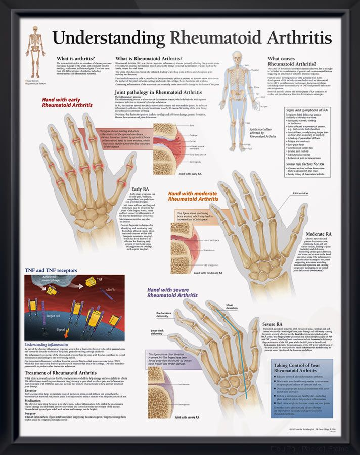 Understanding Rheumatoid Arthritis anatomy poster defines Rheumatoid Arthritis (RA), explains signs, symptoms and causes of the painful condition. Skeletal system for doctors and nurses.