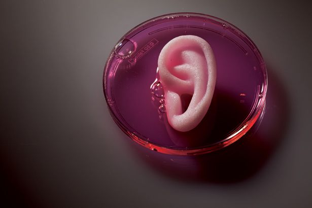 """The synthetic scaffold of an ear sits bathed in cartilage-producing cells, part of an effort to grow new ears for wounded soldiers.""  http://ngm.nationalgeographic.com/2011/03/big-idea/organ-regeneration-text"