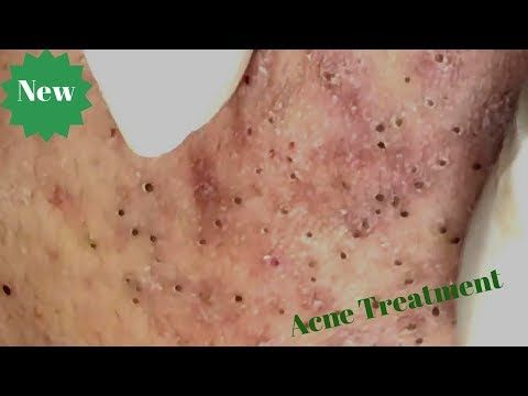 Blackheads Extraction on Face - Acne Treatment (Part 05) - YouTube