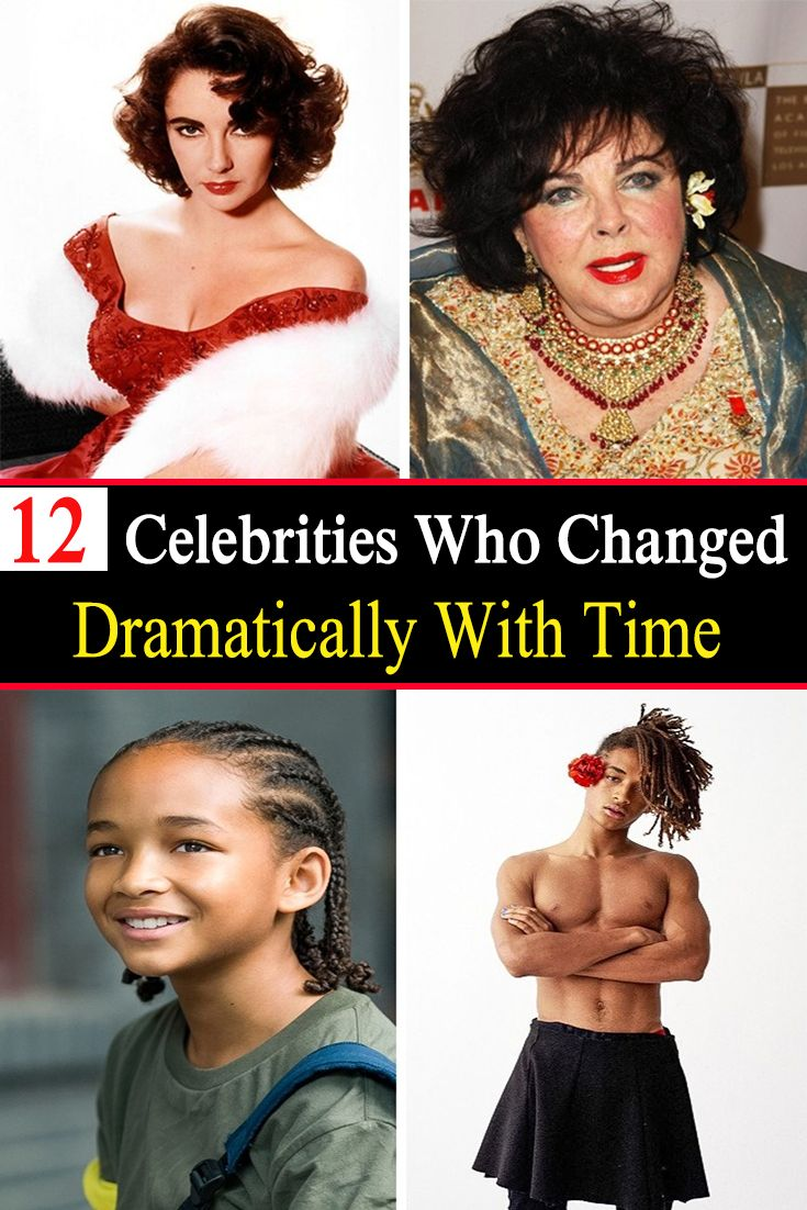 12 Celebrities Who Changed Dramatically With Time Celebrity Updates Celebrities Celebrity Gossip