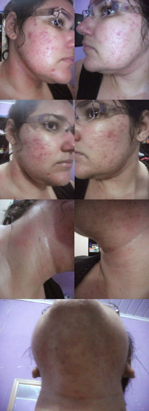 Flaviland  : ♥ Roacutan, eu usei! ♥ Treatment of Acne ♥ Tratamiento del acné ♥